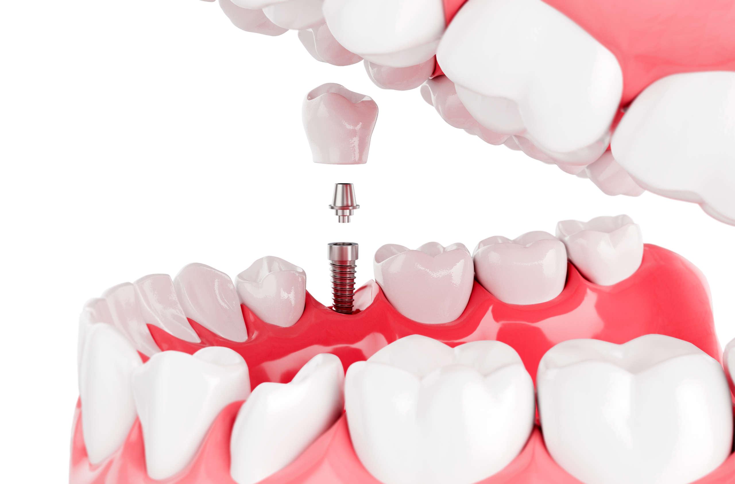 zahn-implantat-lohmar